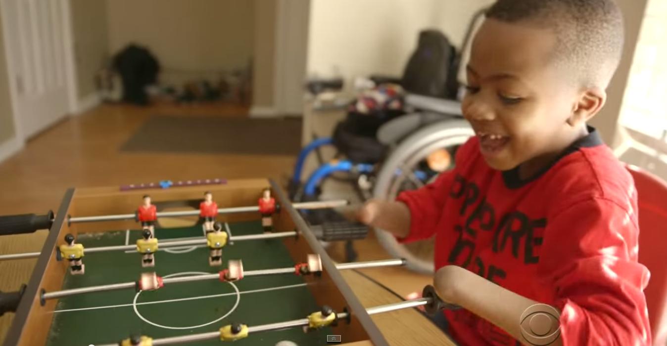 Zázračná transplantácia rúk! Tento chlapček získal opäť ruky – VIDEO
