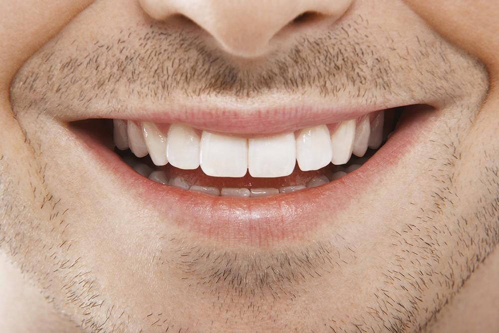 Udržte si biely úsmev pomocou týchto piatich prirodzených spôsobov