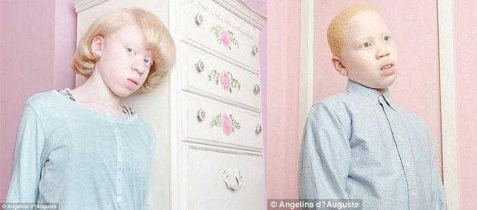 Fotky ľudí trpiacich dedičnou chorobou Albinizmom