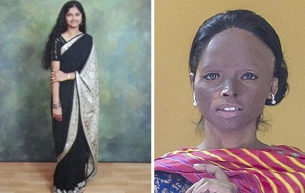 Prežila útok kyselinou a stala sa tvárou módnej značky v Indii