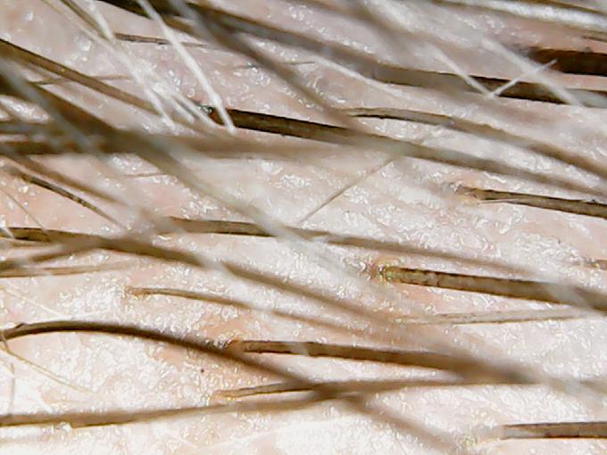 microscope-eyebrows