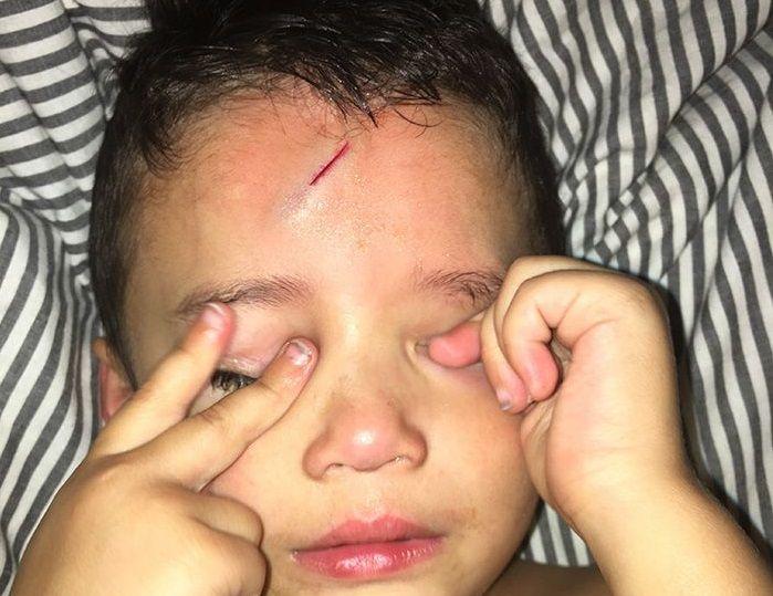 Chlapček si rozbil čelo a stačilo len málo a je z neho hit internetu