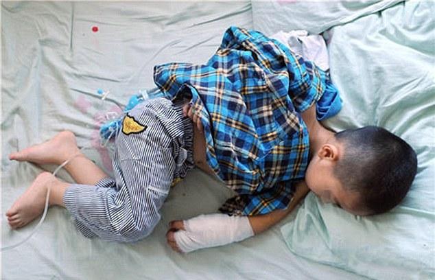 Štvorročnému chlapcovi do zápästia vrástla gumička. Hrozila mu amputácia!