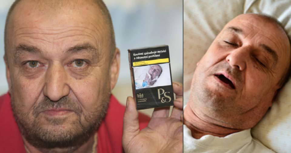 Predstav si, že sa nájdeš na krabičke od cigariet a si reklamou na smrť. Toto sa stalo 53-ročnému Pavlovi