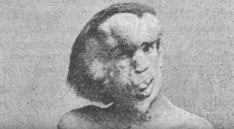 Ako vyzerali ľudia s najdivnejšími telesnými anomáliami?!