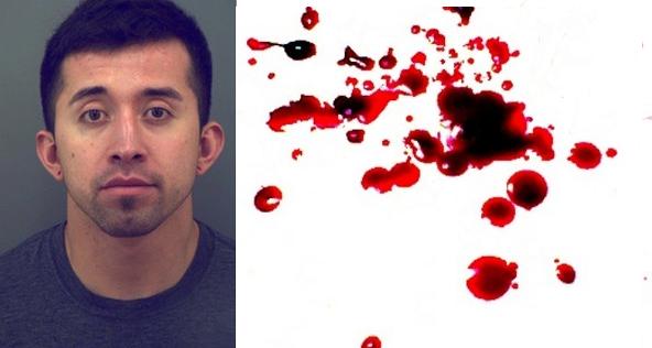 Krvavý Valentín: Sviatok zamilovaných stál mladú ženu život. Zabili ju čudné praktiky pri milostných hrách