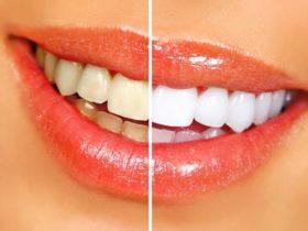 Najlepšie potraviny pre krásne biele zuby a zdravé ďasná