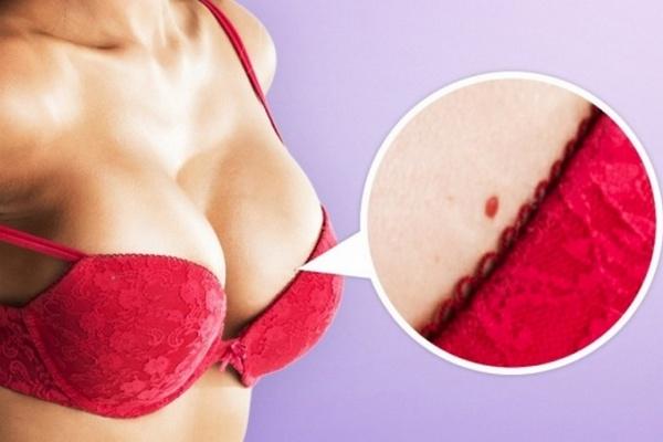 Objavili sa vám na tele červené škvrny? Prezradíme vám, či je čas na paniku alebo nie