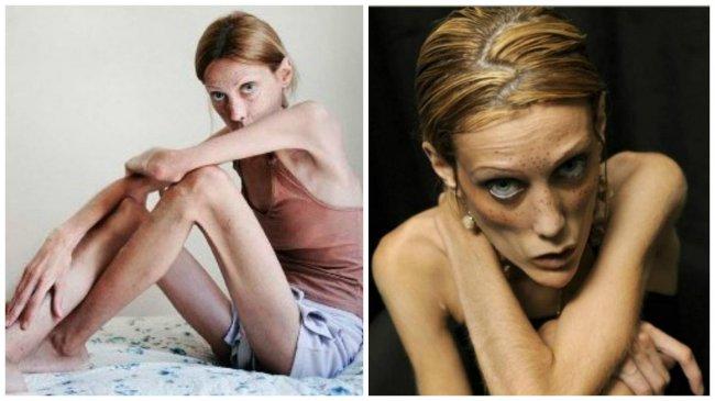 Anorexia a bulímia obrazom i slovom: Takto to vyzerá, keď im človek podľahne