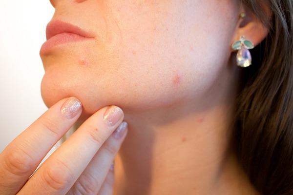 6 vnútorných problémov, ktoré spôsobujú vyrážky na tvári