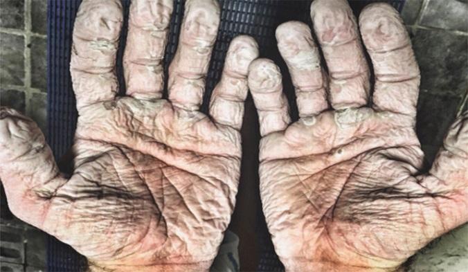 Toto sú ruky 33-ročného muža! Neuveríte, pri čom si ich takto zničil behom 5 dní
