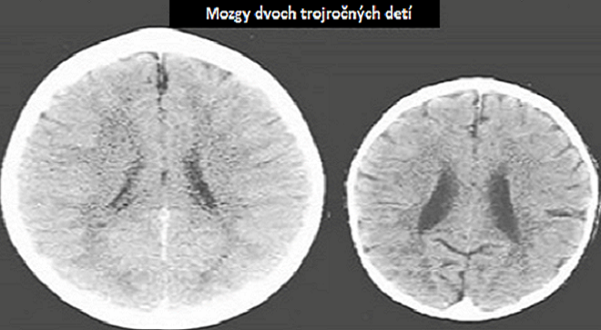 Šokujúce snímky z röntgenu ukazujú ako na detský mozog vplýva láska: Rozdiely sú extrémne