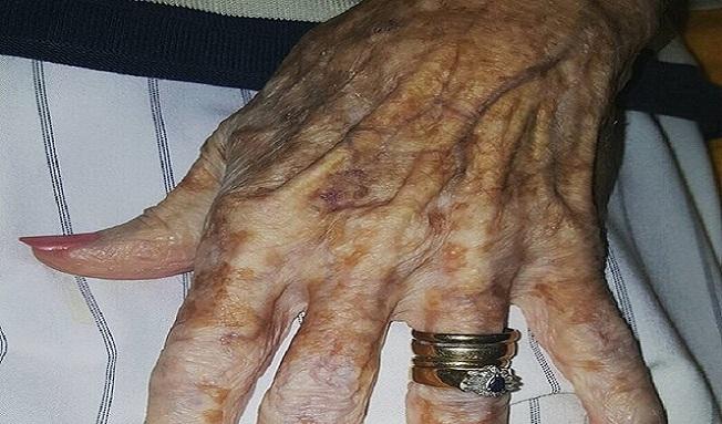 Chorá starenka poprosila zdravotnú sestru, aby jej vyčistila nechty. Sestričkina reakcia ju rozplakala