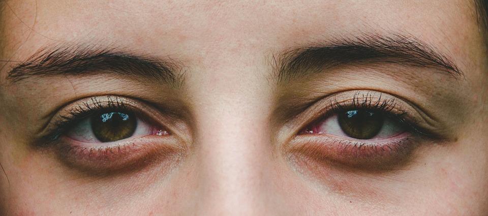 8 vecí, ktoré vám oko naznačí o vašom zdravotnom stave