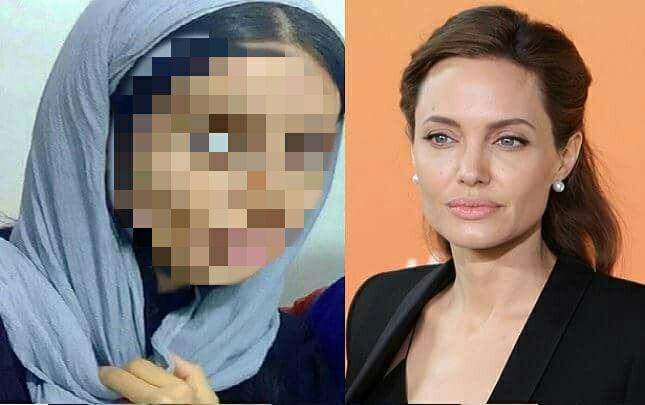 Mladá Iránka túžila vyzerať ako Angelina Jolie a preto podstúpila viac než 50 plastík. Teraz sa z nej ľudia smejú, že vyzerá ako zombie