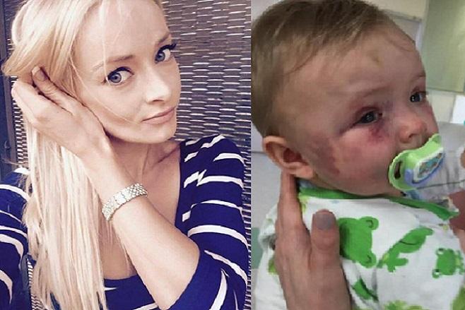 Matka príšerne zbila svoju malú dcérku. Keď zistíš verdikt súdu, nebudeš tomu veriť