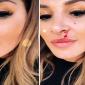 Plačková s krvavou tvárou! Čo sa jej stalo?