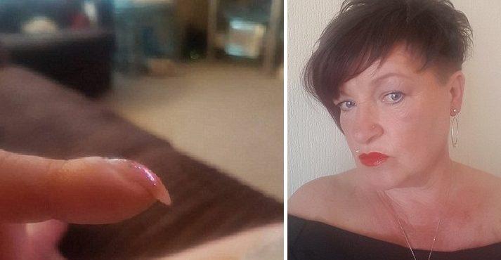 Zverejnila fotografiu, kde jej vidieť nechty. O dva týždne sa od lekárov dozvedela desivú diagnózu a rozhodla sa všetkých varovať