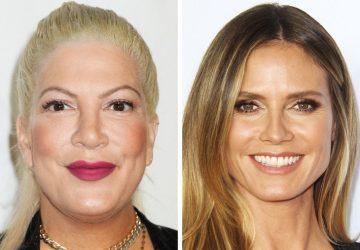 WOW! Rovnaký vek, no diametrálne odlišný výzor. Ako nás dokážu zmeniť zásahy plastických chirurgov?