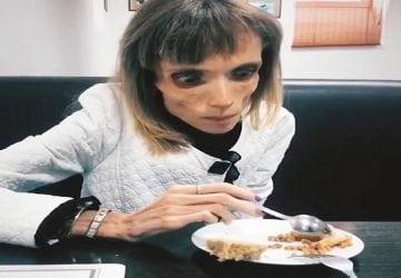 Má 26 rokov a neváži viac 5-ročné dieťa. Mladej anorektičke lekár povedal, že môže hrať v horore
