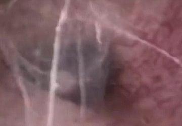 Muža bolelo ucho, tak šiel k lekárovi. Ten ostal z nálezu v šoku (VIDEO)