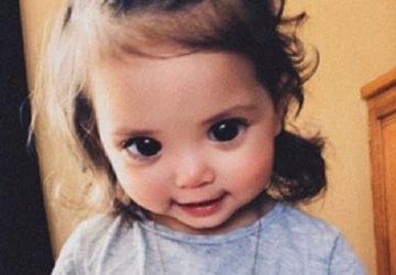 Obrovské oči tohto dievčatka zaujmú každého. Sú však viac prekliatím ako darom