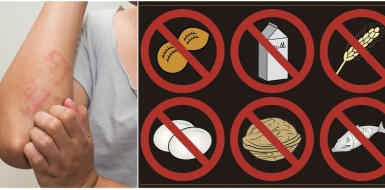 Alergia na jedlo: 4 rady, ako ju bez námahy zvládnete aj počas cestovania