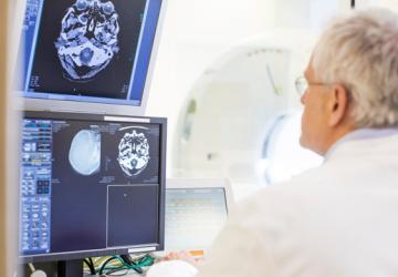 Vedci objavili kurióznu metódu prinavrátenia pamäti. Mozog dostane elektrický šok